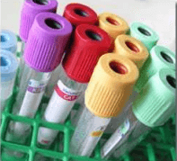 blood draw tubes in a holder